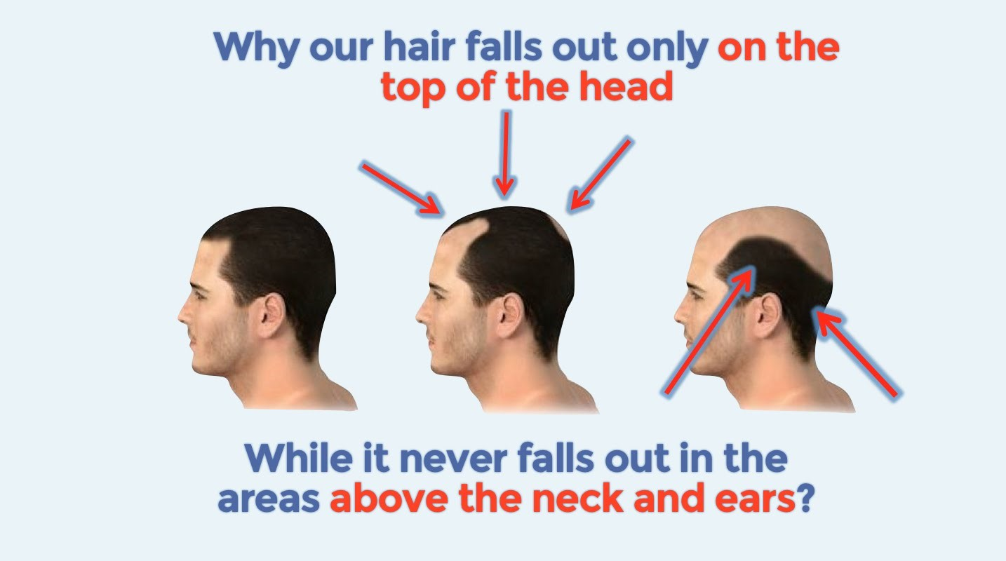 Why Our Hair Falls Out Only On The Top Of The Head