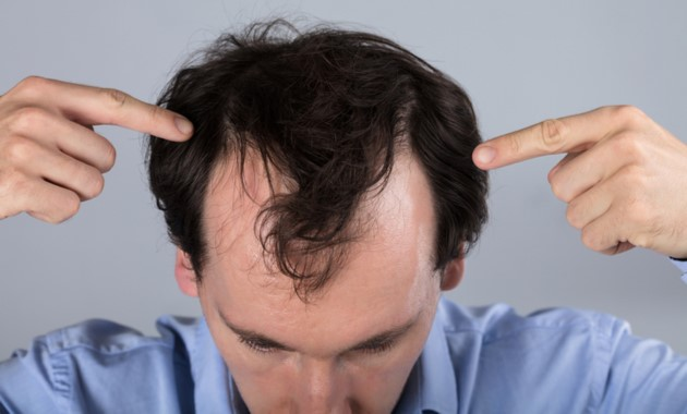Hair Loss Is Typically Related To One Or More Of The Following Factors
